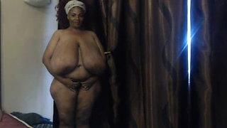 huge breast - Extreme macromastia